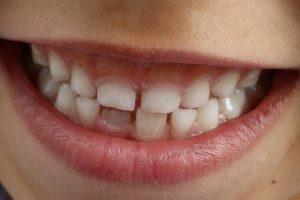 deglucion atipica en Valencia - dentadura