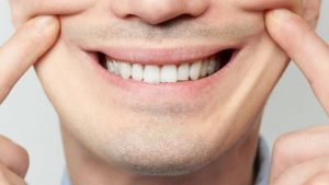 depresión sonriente - sonrisa forzada